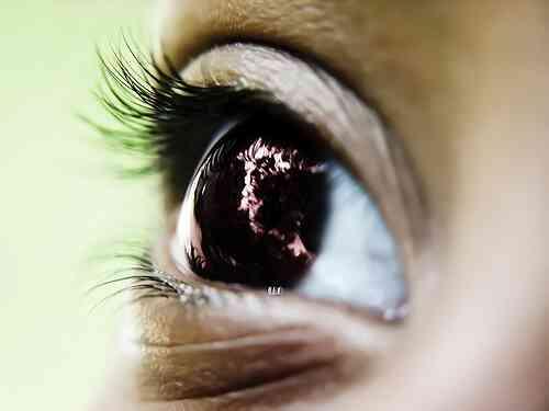 Quel Matériel serait un Optométriste Besoin?