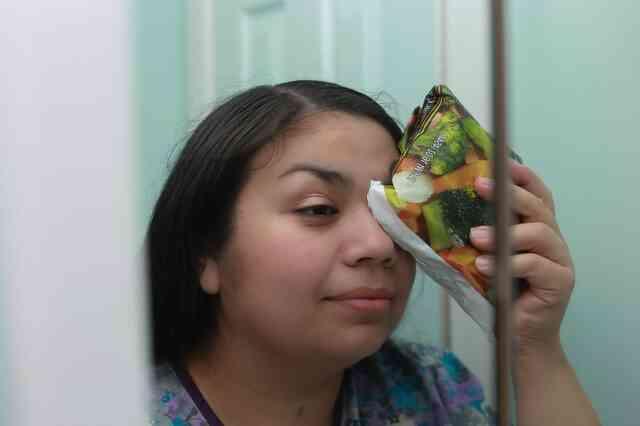 Paupières Gonflées Cure
