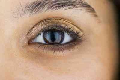 Cause de Cataractes sous-capsulaires