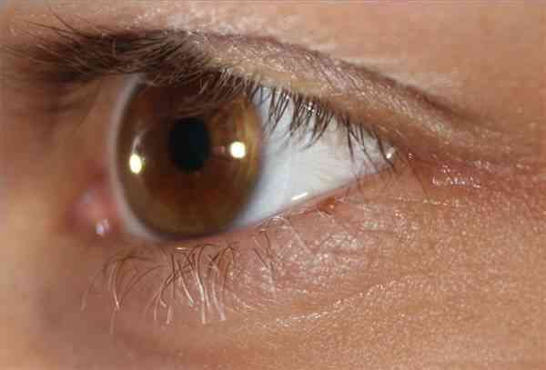 Ce Sont Prednisolone Gouttes Oculaires?