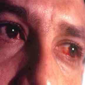 Comment Fait-Rose-Eye Propagation?