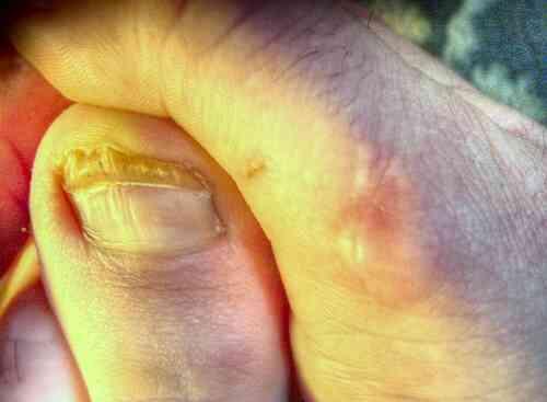 Quelle Est la Différence Entre une Infection à Levures & Champignon?