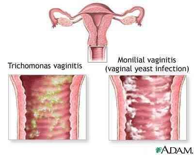 Soulagement pour les Irritations Vaginales Démangeaisons et l