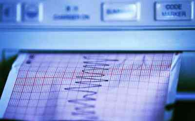Post-crise Cardiaque les Symptômes de