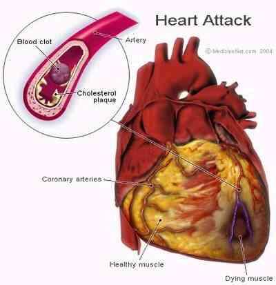 Cœur Blocage Symptômes