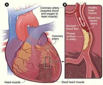 Combien De Temps Les Symptômes De Crise Cardiaque?