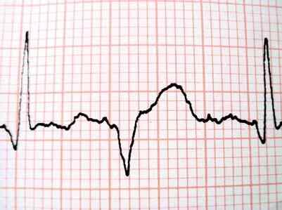 Comment Calculer la fréquence Cardiaque sur un ECG