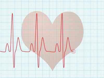 Comment se Préparer pour un Échocardiogramme