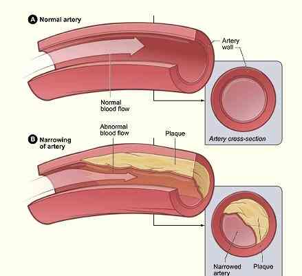Artère Bloquée, Symptômes & Vaisseaux Sanguins