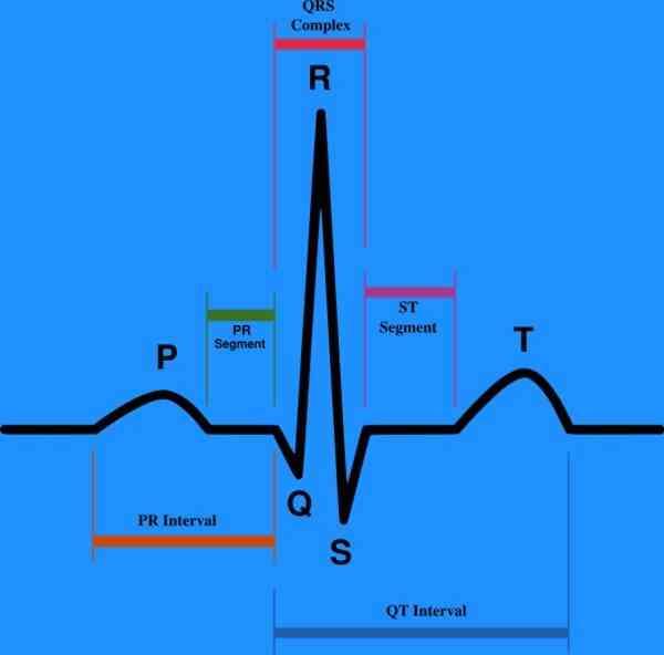 Comment Interpréter les Électrocardiogrammes