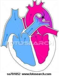 Insuffisance Cardiaque Congestive Traitements