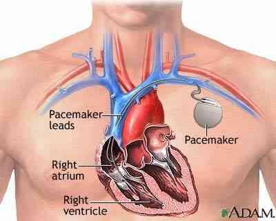 Quels Sont les Traitements pour les Palpitations du Cœur?