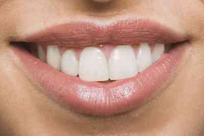 Comment Blanchir les Dents dans Gimp